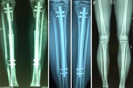 Phẫu thuật kéo dài chân – Đừng để phải tăng chiều cao bằng cách đau đớn này