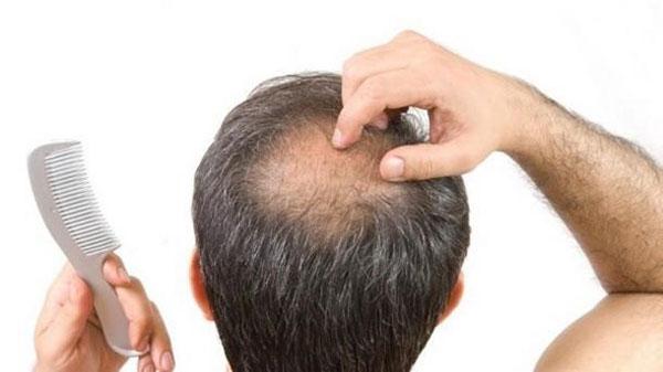 Người thấp lùn có nguy cơ bị hói đầu cao