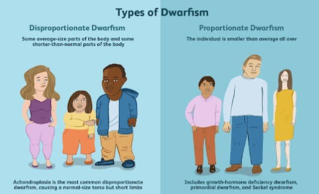 Hội chứng Achondroplasia một trong những nguyên nhân khiến trẻ rối loạn tăng trưởng